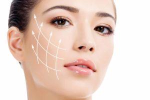 preenchimento na harmonização facial