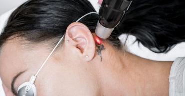 Mulher é submetida a técnica de como remover tatuagem do pescoço